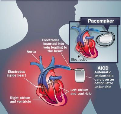 Pacemaker ICD Diagram